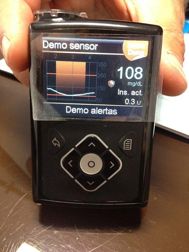 SmartGuard de la bomba de insulina MiniMed 640G