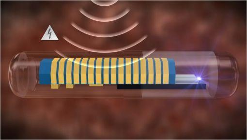 Vista en detalle del chip implantable de Senseonics