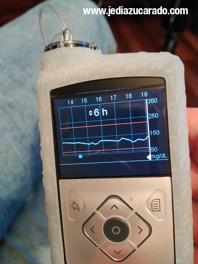 Reducir la variabilidad glucémica se logra más fácil con la bomba de insulina