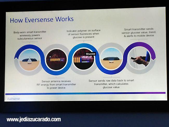 Sistema de medición Eversense