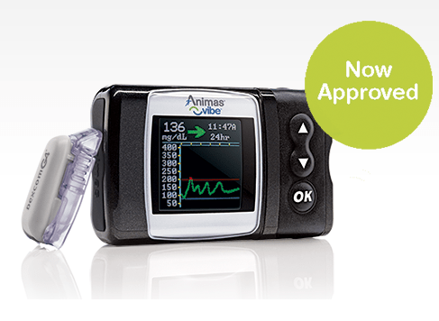 Bomba de insulina Animas Vibe ahora con Dexcom integrado
