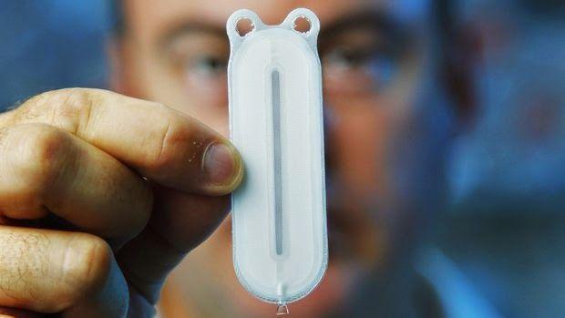 controlar la glucosa con células beta encapsuladas