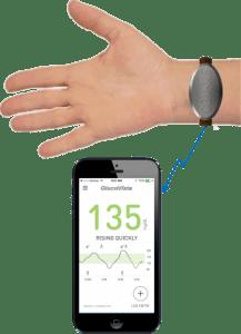 Glucovista, medición continua de glucosa no invasiva