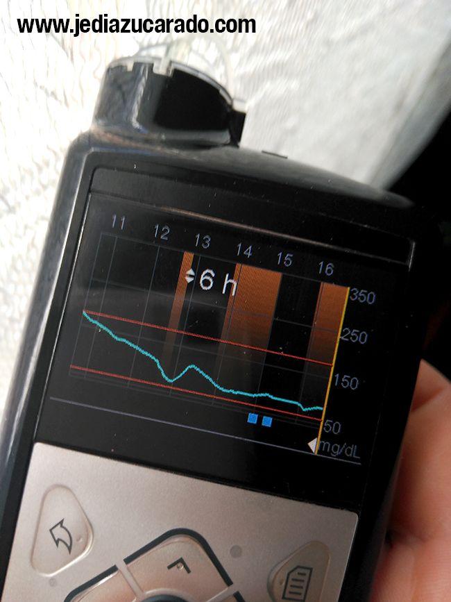 Funcionamiento del sistema SmartGuard en la MiniMed 640G