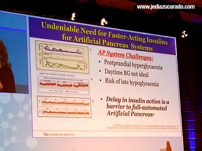 insulinas ultrarrápidas y páncreas artificial